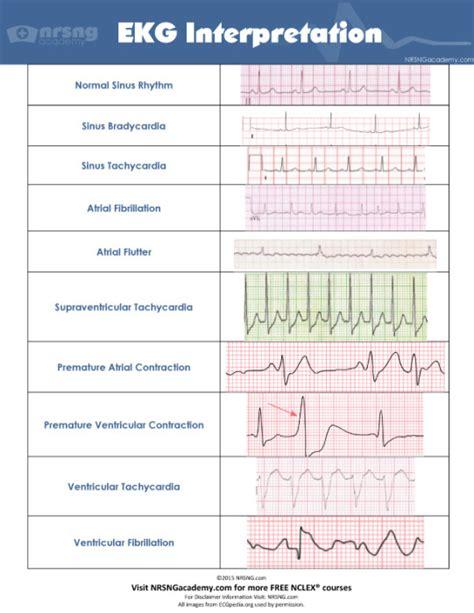 ecg pattern analysis for emotion detection interpret ekgs strips like a boss ekg interpretation for