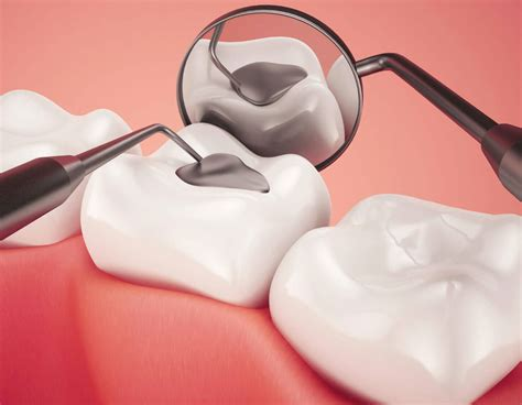 comfort dental oral surgery composite fillings in delta bc delta dental clinic
