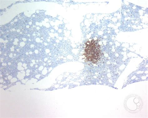 Rituximab Also Search For Rituximab Associated Marrow T Cell Hyperplasia 6