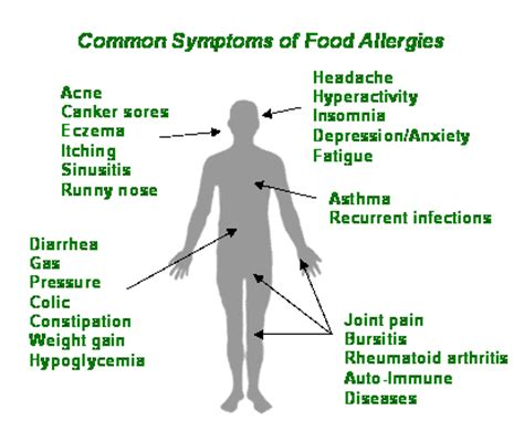 symptoms of allergies are food allergies real