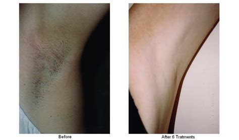 brazilian laser hair removal male on li ny laser hair removal long island om hair