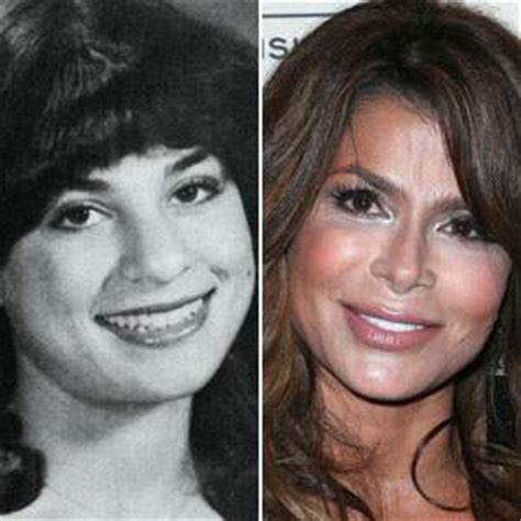 paula abdul plastic surgery before and after photos