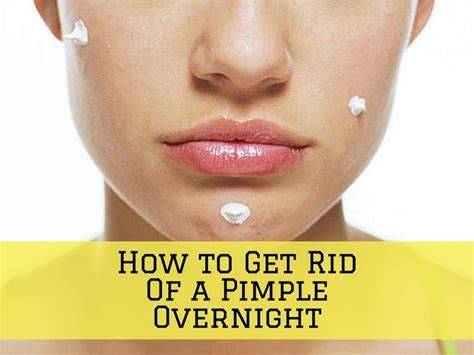 How To Get Rid Of Detox Acne Fast by The 25 Best Pimples Overnight Ideas On Clear
