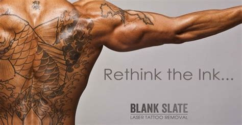 tattoo removal deal voice daily deals half laser removal