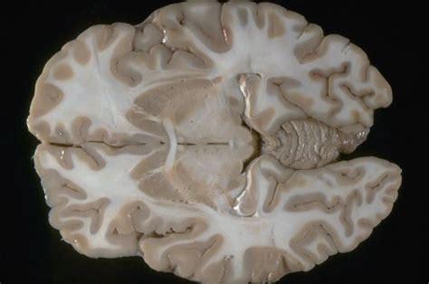 transverse section of the brain neuroanatomy