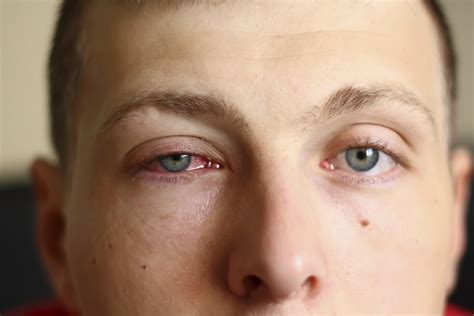Mcgowans Droopy Eye Problem by Ptosis Repair