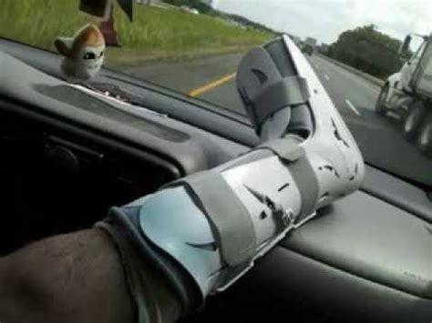 quot quot broken ankle broken tibia fibula
