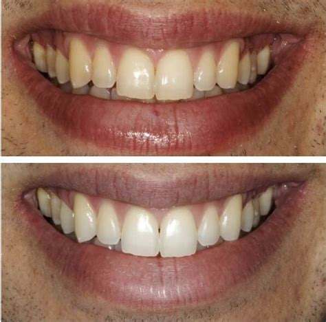 teeth whitening instructions beverly hills west