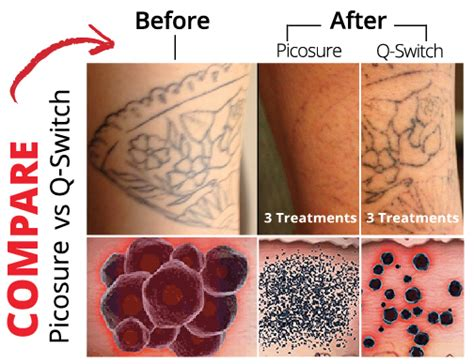 laser tattoo removal skinpossible laser amp light calgary