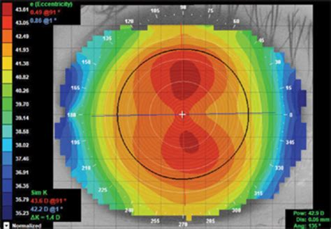 contact lens spectrum designing gps from corneal topography