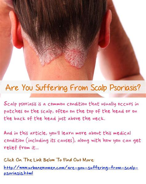 514 best images about ways to cure psoriasis on