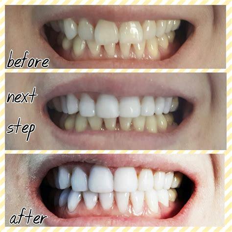 Veneer Pemutih Gigi ngetren di kalangan artis apa veneer gigi itu berapa biayanya plus kapanlagi
