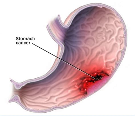 a diagram of the stomach stomach cancer diagram encognitive