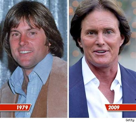 bruce jenner will be returning to motivational speaking watch videos ten worst celeb face lifts men how did you fuck this up