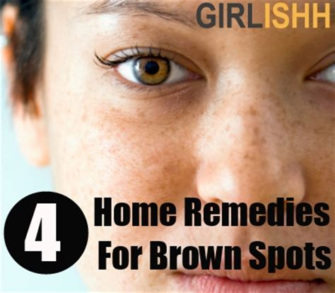 4 best home remedies for brown spots on skin how to