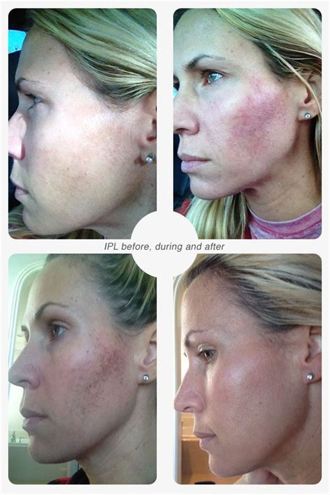 e one ipl session before and after on man and woman face why i love ipl or photo facials and you will too beauty