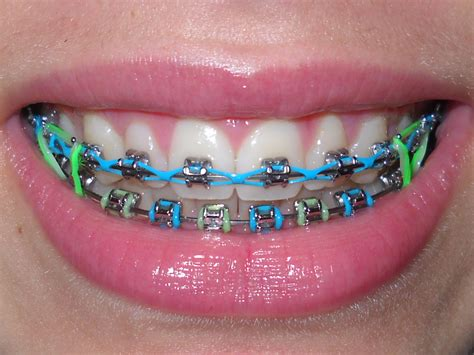 braces colors braces color combinations www imgkid the image kid