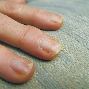 nail bed damage 29 fashion avenue avoid nail damage with proper gel