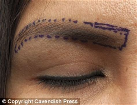 Eyelash Transplant Surgery Becames Popular 2 by Shows Eyelash And Eyebrow