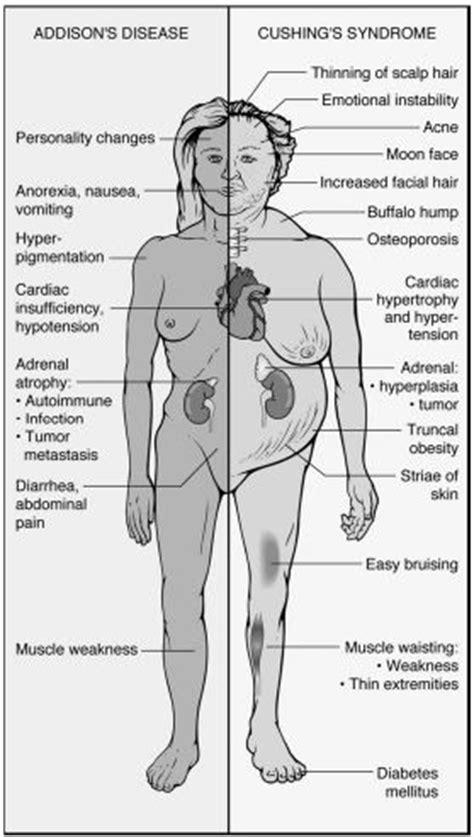 cushings disease s disease vs cushing s disease rnpedia