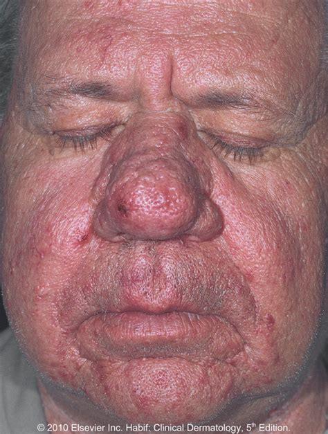 best medicine for rosacea rosacea according to medicine zi zai dermatology