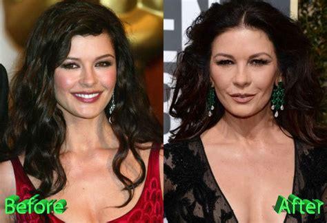 catherine zeta jones surgery catherine zeta jones before and after cosmetic surgery