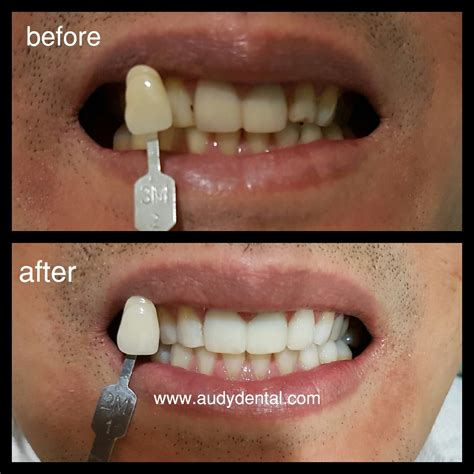 Biaya Pemutihan Gigi Bleaching pemutihan gigi bleaching audy dental 2 audy dental