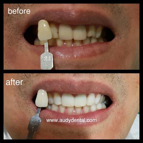 Pemutihan Gigi Bleaching pemutihan gigi bleaching audy dental 2 audy dental