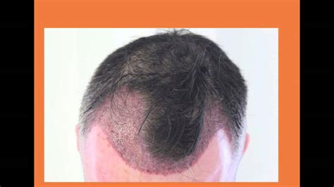 fue results with short hair fue hair transplant 1920 grafts whtc www ufue