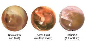 ear infections fluid and hearing loss michael