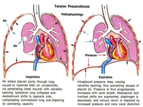 Simple And Spontaneous by Tension Pneumothorax Search Nursing