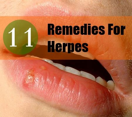11 home remedies for herpes remedy treatments