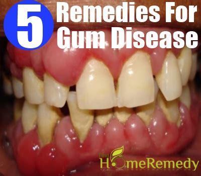 gum disease treatment at home home remedies for gum disease treatments cure