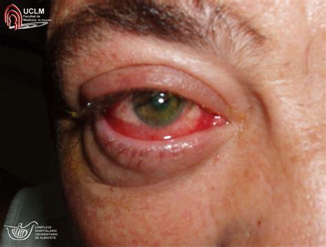 imagenes ojos con conjuntivitis conjuntivitis virica
