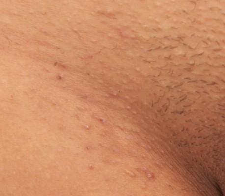 thick pubic hair photos ingrown hair removal treatment special offered at