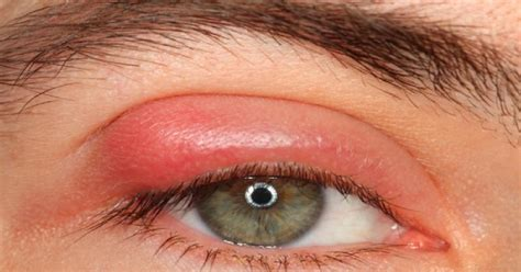 symptoms of pink eye home remedies for pink eye cure for pink eye