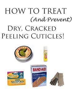 7 Ways To Prevent Chapped by Want Great Cuticles Here Are 12 Great Products To Get You