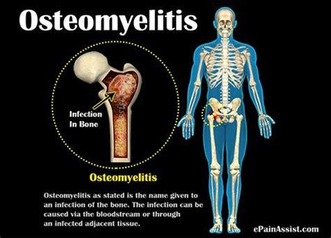 osteomyelitis: treatment, prevention, diagnosis, symptoms