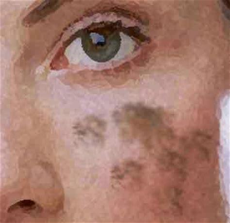 porque salen manchas en la cara manchas en la piel por qu 233 salen salud y suerte