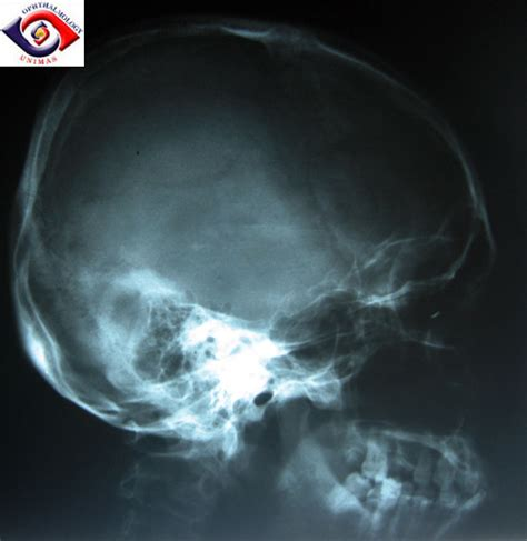 ophthalmic imaging posterior segment imaging anterior eye photography and slit l biomicrography applications in scientific photography books snec sarawak national eye centre atlas of ophthalmology