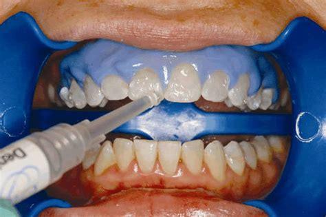 Pemutihan Gigi Bleaching bleaching gigi untuk pemutihan gigi orange dental makeyoufeelbetter