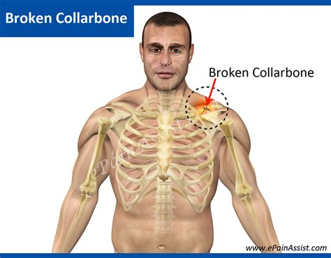 image gallery male clavicle