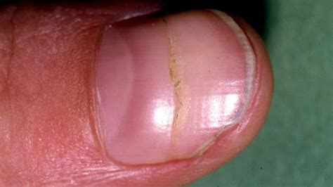 beaus lines how to recognize a beau line fingernail nail abnormalities symptoms causes and prevention