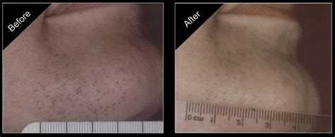 pulsed light hair removal ipl hair removal the aesthetic wellness center