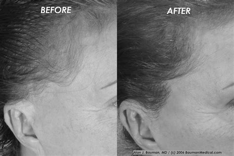 dr bauman offers no linear scar hair transplants with sideburn loss after facelift plastic surgery answers