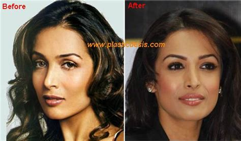 Sharefa Navy malaika arora plastic surgery before and after jpg