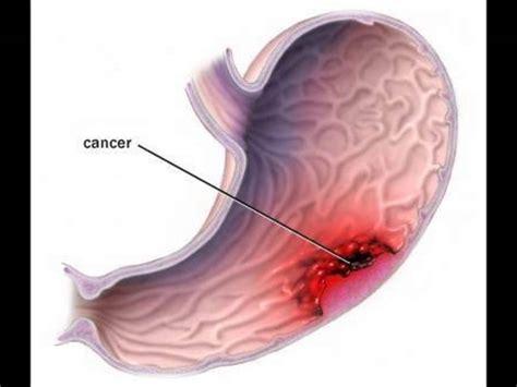 imagenes niños con cancer cancer de estomago por radio quot vidasana quot youtube