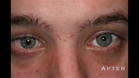 custom color contacts custom color contacts before and after prosthetic photos