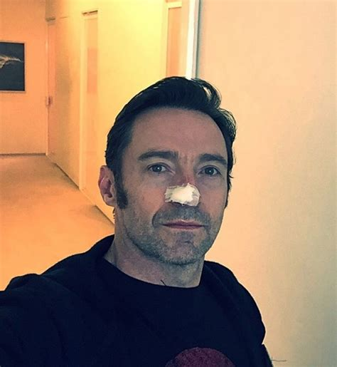 Hugh Jackman Was Stunned After Witnessing Brain Surgery by 15 Photos About The Strength Of The Human Spirit