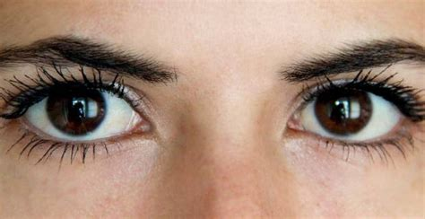 ojos bizcos imagenes remedios naturales para la resequedad de los ojos